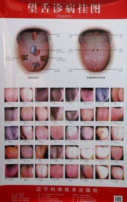 望舌诊病挂图:附说明书