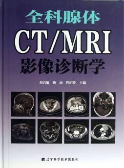 全科腺体CT/MRI影像诊断学 刘兴第,边杰,程绍玲 编 辽宁科学技术出版社